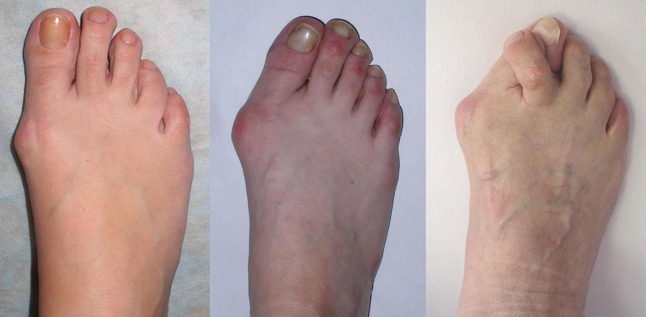 Причины увеличения косточки на ноге
