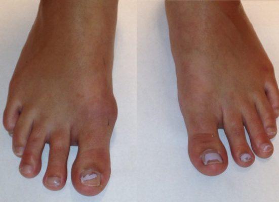 Начальная стадия вальгусной деформации большого пальца стопы.