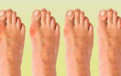 Обзор средств для лечения косточки на ноге