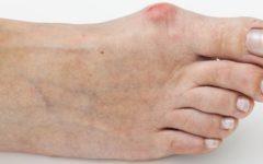 Опухла косточка на ноге