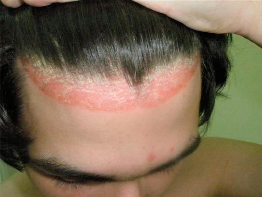 Опоясывающие волосистую часть головы псориатические высыпания называют псориатической короной