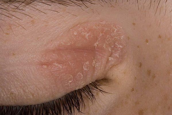 Как нужно лечить псориаз на глазах