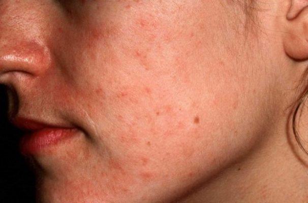 Начальная стадия псориаза на лице.