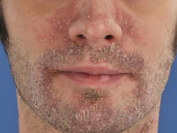 Себорейный псориаз лица