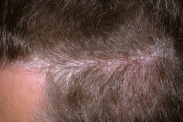 Начальная стадия псориаза на голове
