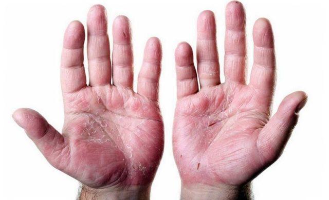 Ладонно-подошвенный псориаз лечение симптомы и стадии