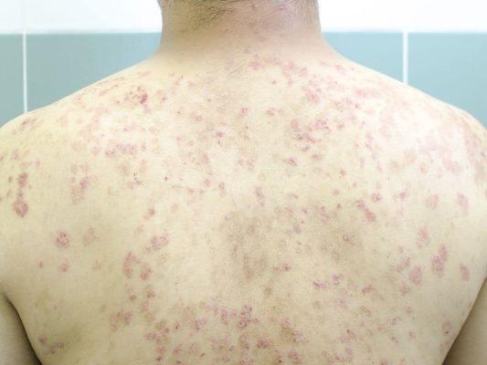 Псориаз на спине: стационарная стадия