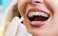 Стоматолог-ортодонт