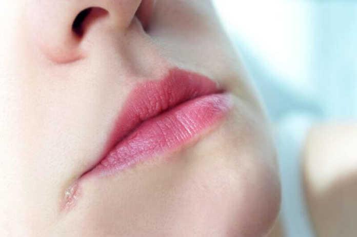 Заеды в уголках рта (ангулярный стоматит)