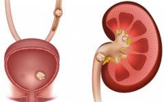 Мочекаменная болезнь (МКБ или уролитиаз)